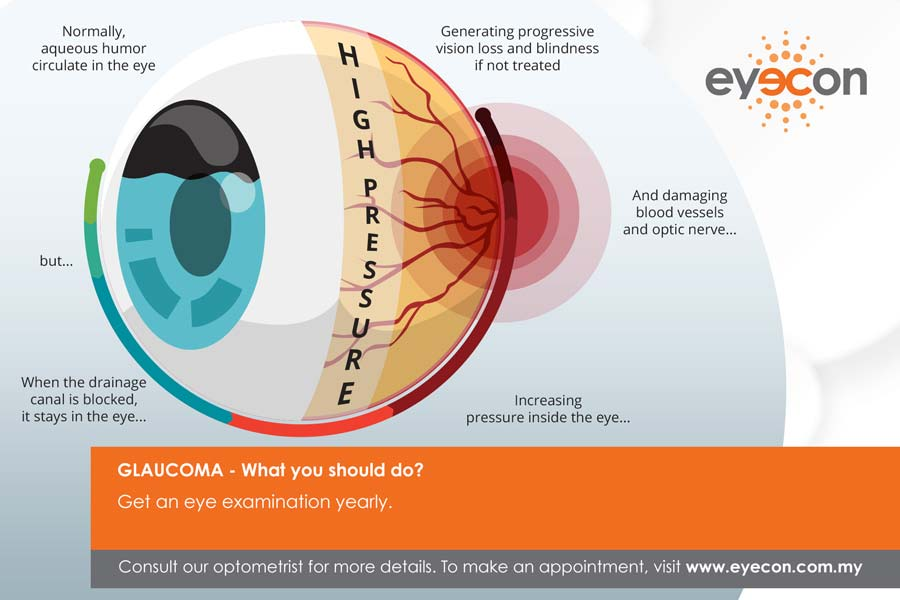 Eye Disease - Glaucoma