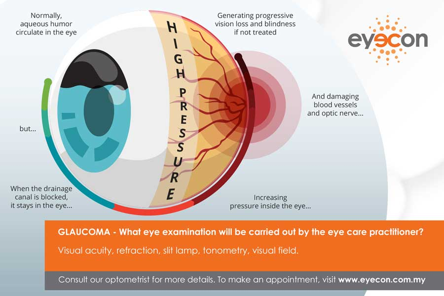 Eye Disease - Glaucoma